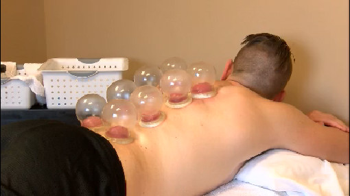 cupping_297804