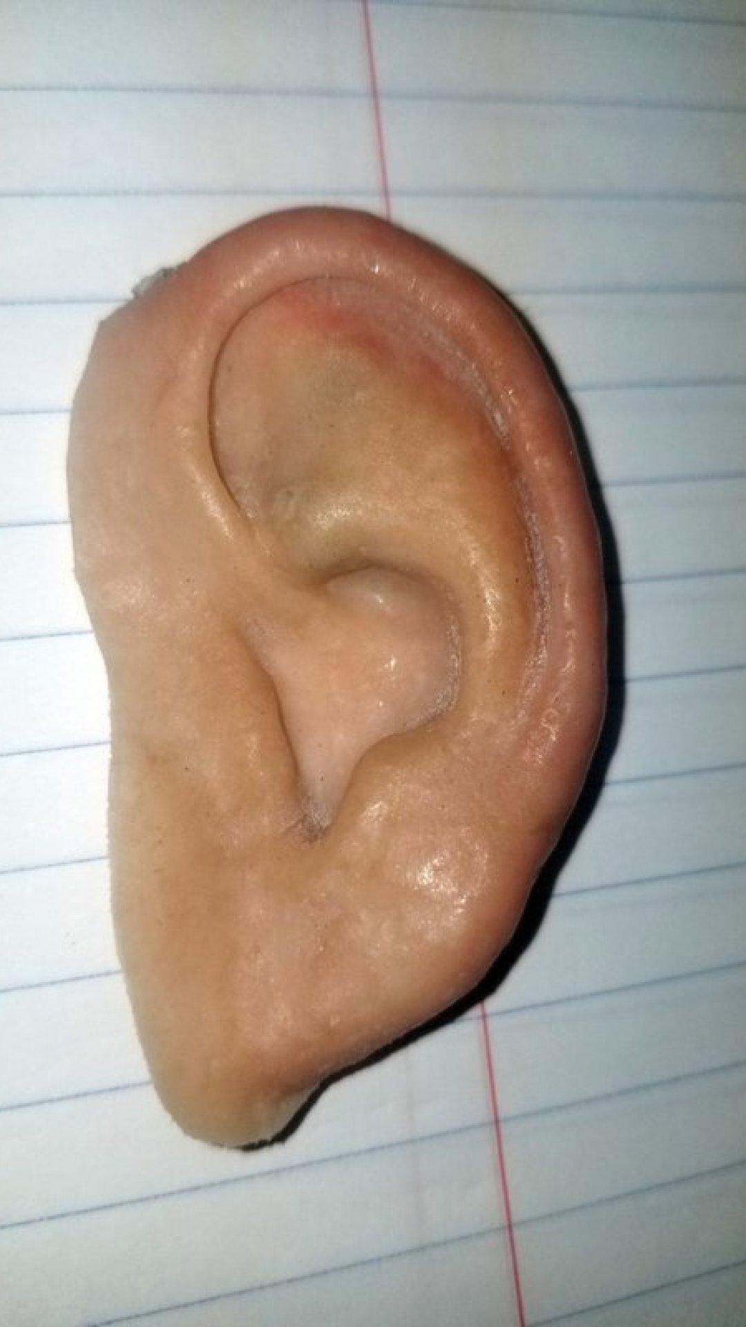 prosthetic-ear_1561085693354.jpeg