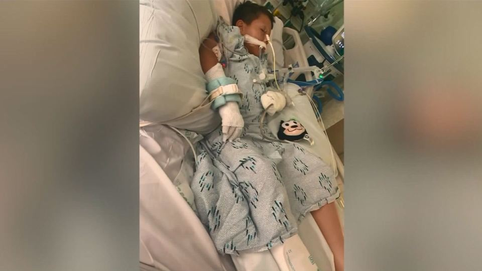 boy  10  loses hand after he was given lit firework as